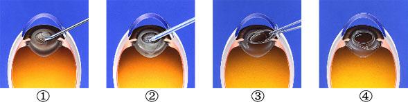 白内障の手術方法